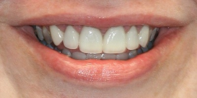 After view of new veneers